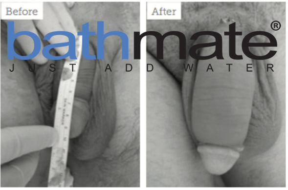 bathmate-before-after33